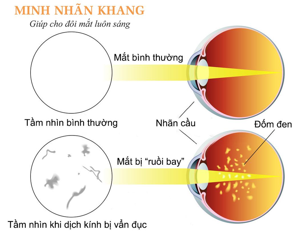 So sánh hình ảnh của mắt bình thường và mắt bị vẩn đục dịch kính